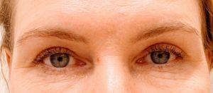 Kulmakarva- ja yläluomileikkaus - kuva jälkeen