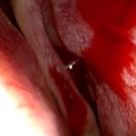 Kyyneltien luuaukkoleikkaus nenan kautta