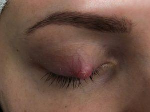 Näärännäppy silmäluomessa