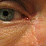 Silmaluomikasvain, tyvisolusyopa, basaliooma